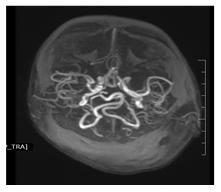 Menkes disease   Pediatric Oncall Journal