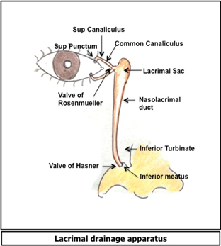 Congenital Nasolacrimal Duct Obstruction: Diseases and ... Inferior Meatus Drainage