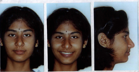 Patient after orthodontic treatment