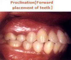Proclination (forward placement of teeth)