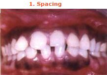 type of malocclusion