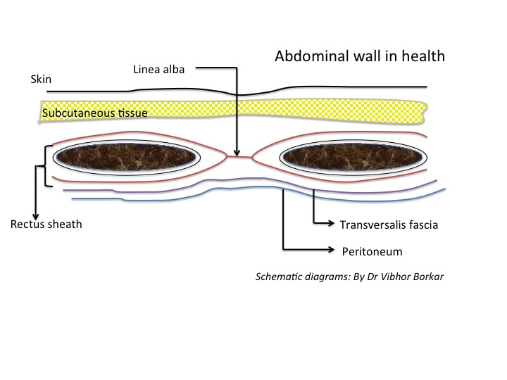 Schematic diagram of abdominal wall layers in health.