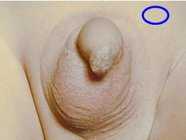 Testis not in scrotum but in inguinal region