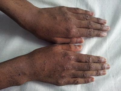 Hyperkeratotic Flat Papules Spot Diagnosis Pediatric Oncall