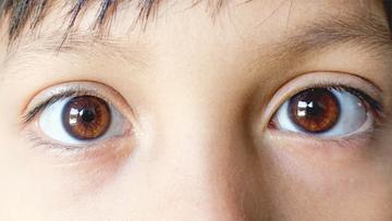 Ectropion (Drooping Eyelids)