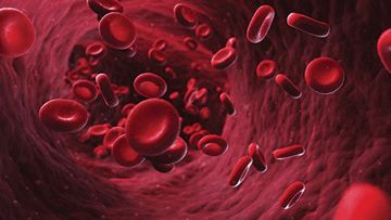 Fanconi's Anemia