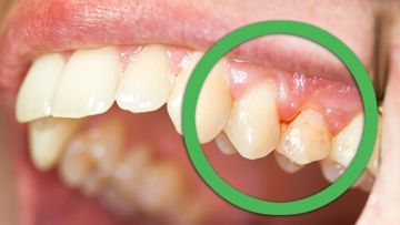 Gingivitis (Bleeding Gums)