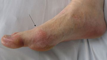 Gout - Blood Picture