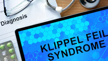 Klippel Feil Syndrome