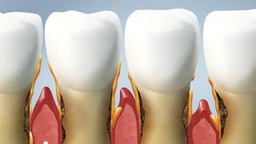 Periodontal Diseases