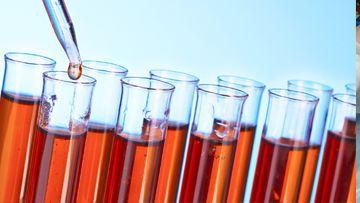Antinuclear Antibody Test (ANA)