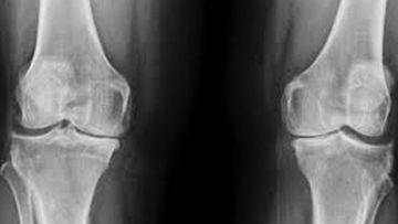 Rickets Radiology