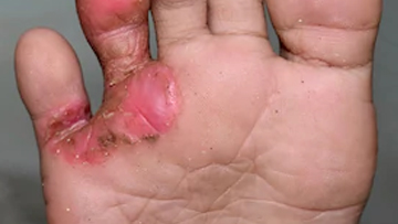 Staphylococcal Scaled Skin Syndrome