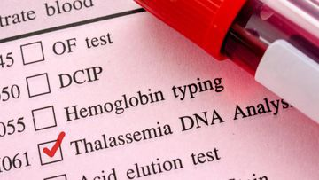 Thalassemia Management
