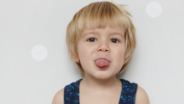 Tongue Tie in Infants