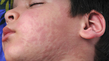 Urticaria (Hives) and Angioedema