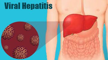 Viral Infective Hepatitis - Blood Picture