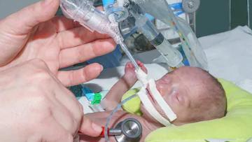 Neonatal Respiratory Distress and treatment modalities