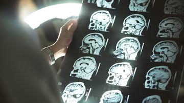 Brain Malformations